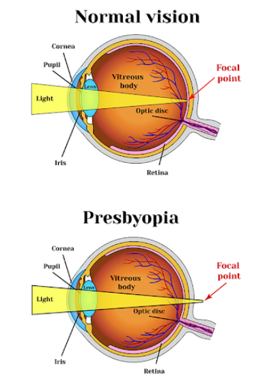 Eye Clinic Round Rock